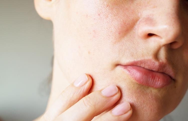 肌荒れとビタミンBの記事のカバー画像